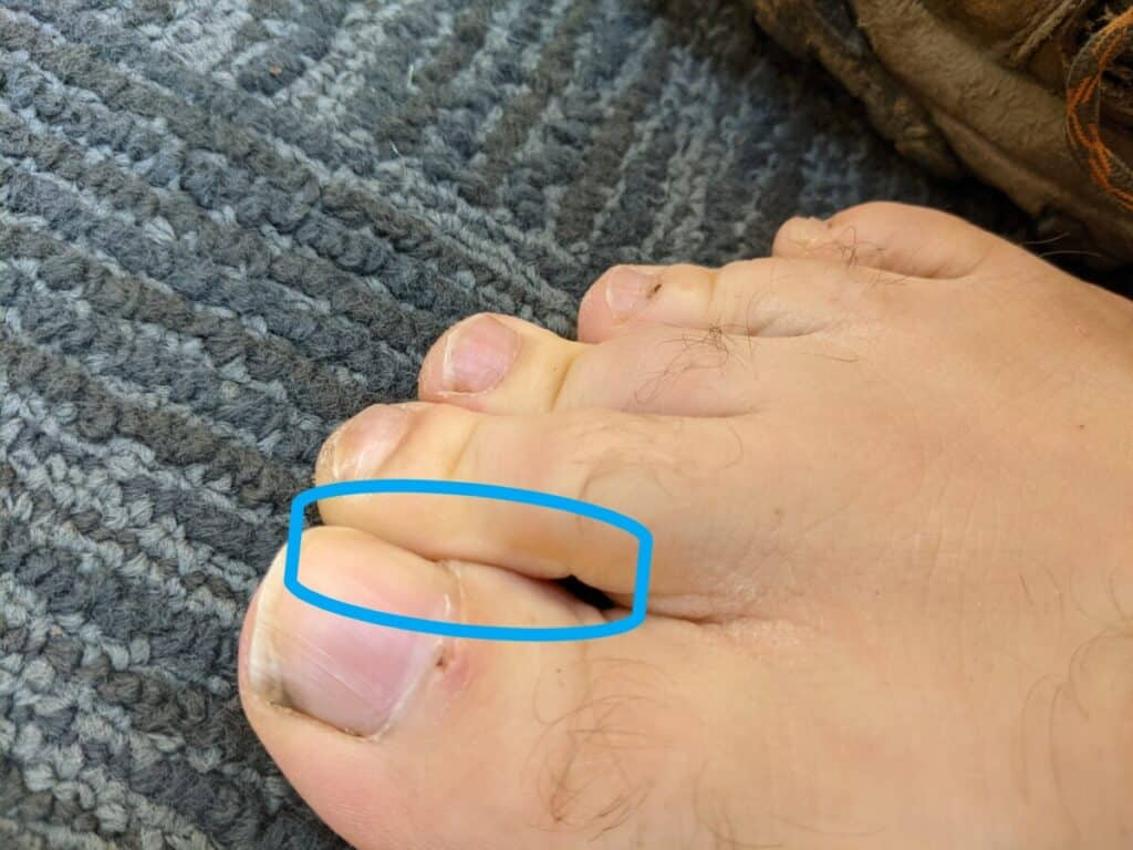 closeup-of-toes-overlapping